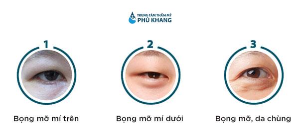 khi nào lấy mỡ bọng mắt