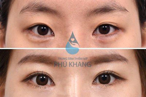 khach-hang-thuc-hien-lay-mo-bong-mat-tai-phu-khang-3