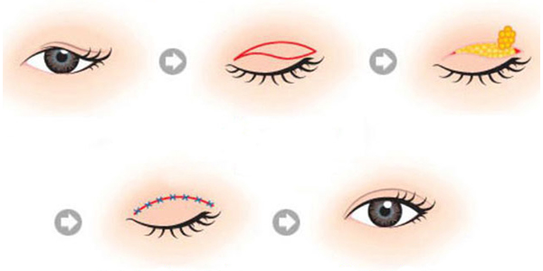 Láy mỡ mí mắt