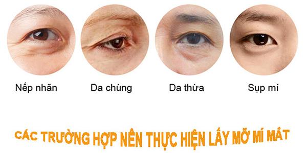 cac-truong-hop-lay-mo-mi-mat