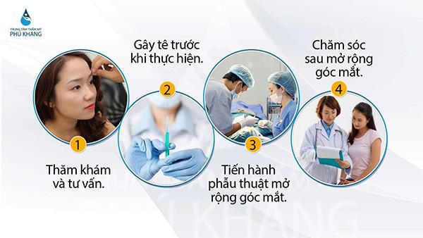 dinh-cao-nghe-thuat-mo-rong-goc-mat-so-huu-doi-mat-hut-hon-002-6