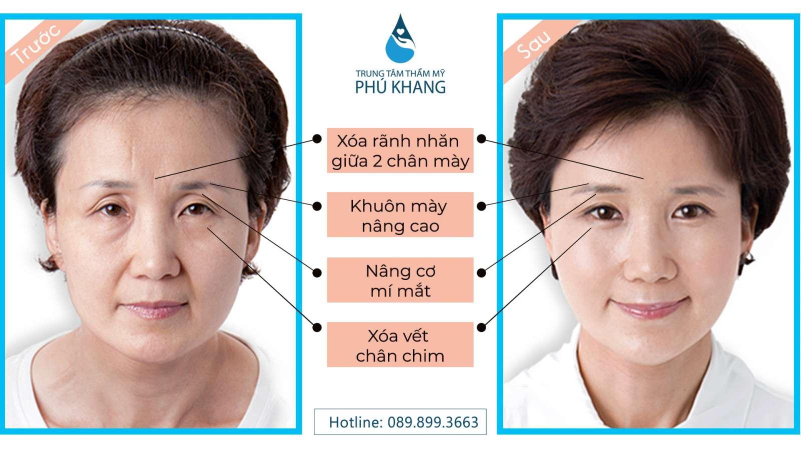 phuong-phap-nang-cung-chan-may-giu-duoc-bao-lau