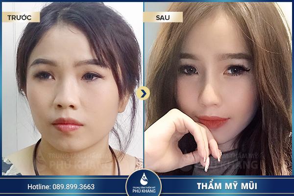 Hình ảnh khách hàng nâng mũi tại TMV Phú Khang