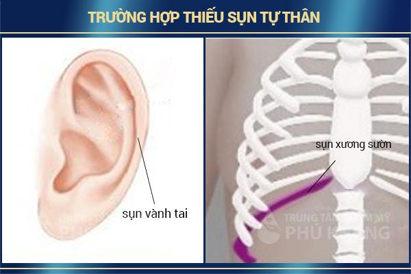 truong-hop-thieu-sun-tu-than