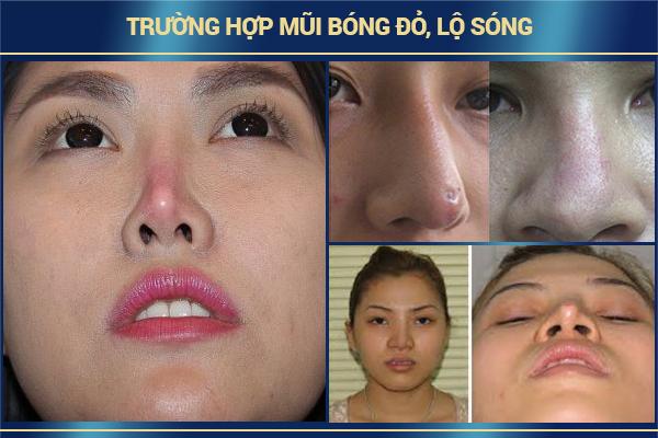 truong-hop-dau-mui-do-hay-lo-song