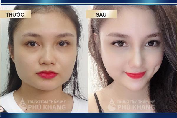 Sửa mũi xong biến thành hotgirl khác hàng sửa mũi giá rẻ