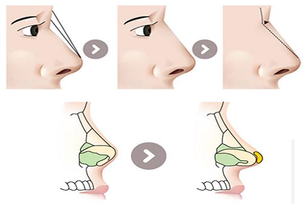 Kiến tại dáng mũi đẹp bằng nâng mũi bọc sụn