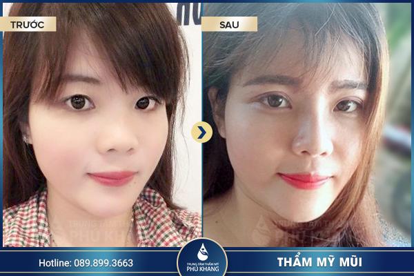 hinh-anh-khach-hang-nang-mui-s-line-nano-form-3