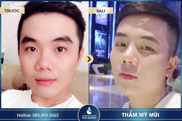 khach-hang-thuc-hien-nang-mui-classic-line-han-quoc-5