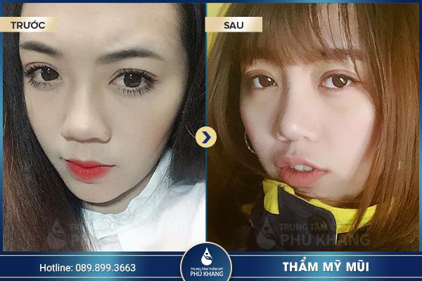 khach-hang-nang-mui-diamond-line-3
