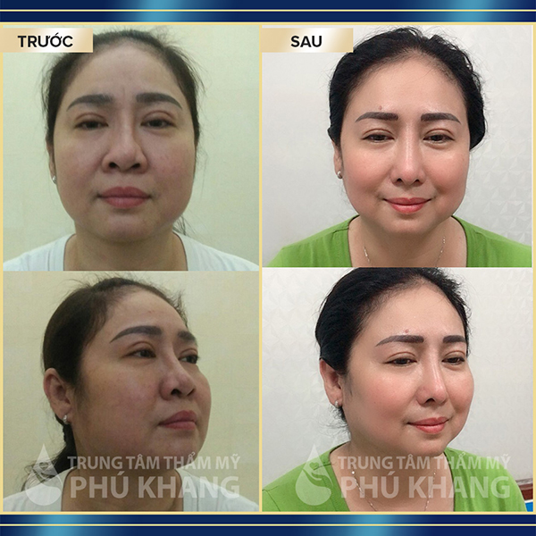 khach-hang-nang-mui-diamond-line-5