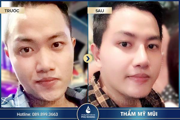 Hình ảnh khách hàng nâng mũi l line cho nam tại TMV Phú Khang