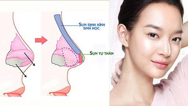 tinh-an-toan-nang-mui-s-line-3d