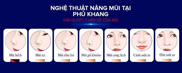 nâng mũi sline khắc phục nhược điểm mũi