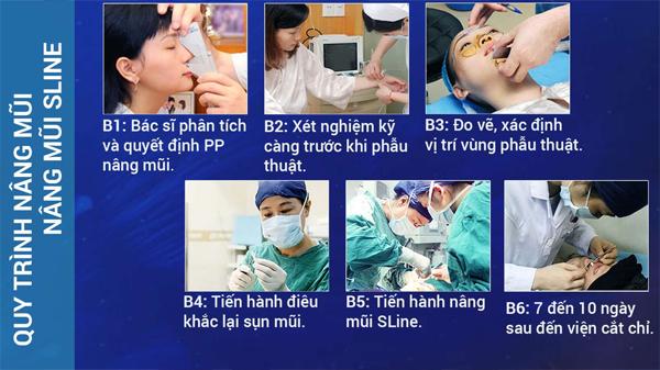 nang-mui-sline-dang-mui-chuan-dep-gap-2-lan-nang-mui-thong-thuong-12