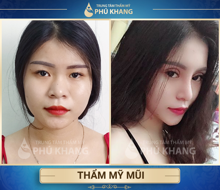 Cải thiện đường nét khuôn mặt sau khi nâng mũi tại Phú Khang