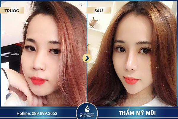 Hình ảnh khách hàng nâng mũi s line tại TMV Phú Khang