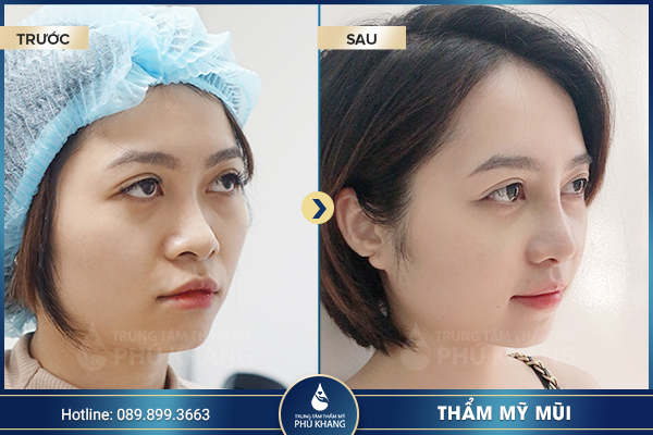 khách hàng nâng mũi