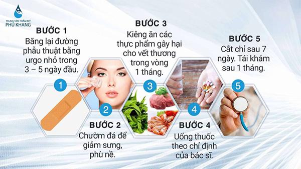 xu-huong-phau-thuat-mat-to-doi-mat-to-tron-hot-nhat-nam-2019-05