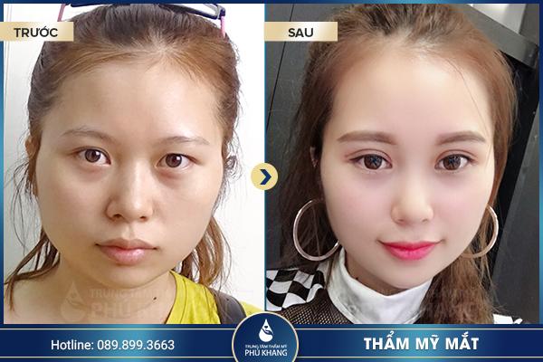 xu-huong-phau-thuat-mat-to-doi-mat-to-tron-hot-nhat-nam-2019-10
