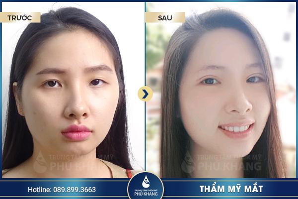 xu-huong-phau-thuat-mat-to-doi-mat-to-tron-hot-nhat-nam-2019-11