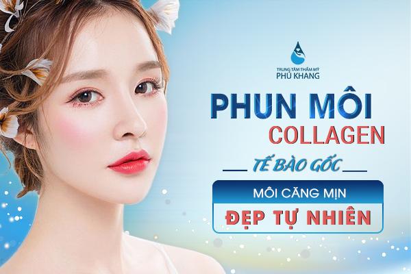 phun-moi-collagen-te-bao-goc-moi-cang-min-dep-tu-nhien