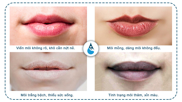 Nguyên nhân gây thâm môi