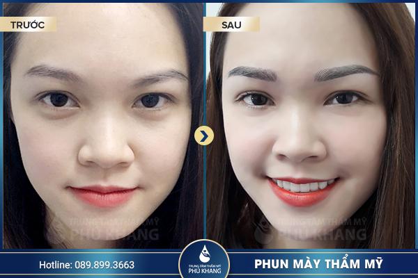 phun-xam-chan-may-tham-my-dep-tai-tp-hcm-02