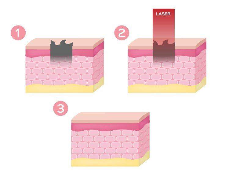 Trị môi thâm bằng laser giúp môi hồng hảo hơn