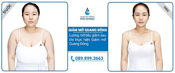 Hình ảnh khách hàng trước và sau khi giảm mỡ tại TMV PHú Khang