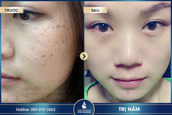 day-lui-tham-nam-voi-cong-nghe-tri-nam-picosure-0012