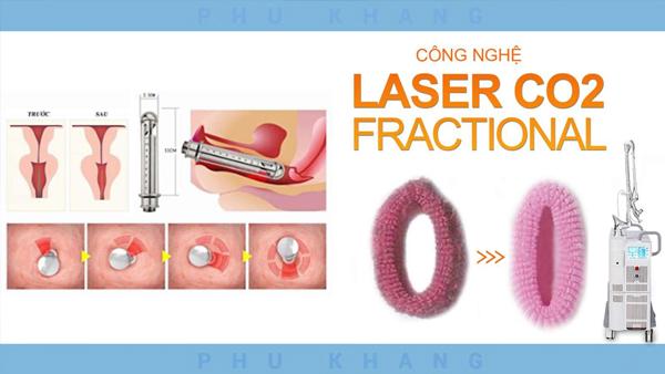 gioi-thieu-lam-hong-vung-kin-bang-laser-fractional-co2