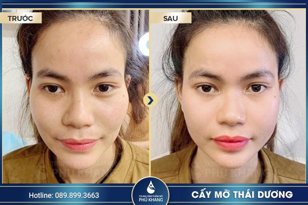 tiem-cay-mo-thai-duong-so-huu-ngay-khuon-mat-tron-day-de-nhin-0003