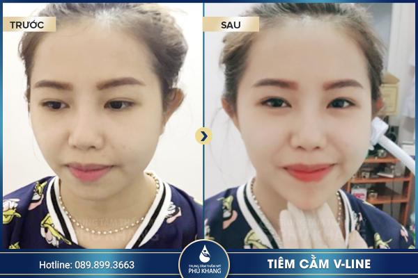 khach-hang-thuc-hien-tiem-filler-cam-tai-phu-khang-2