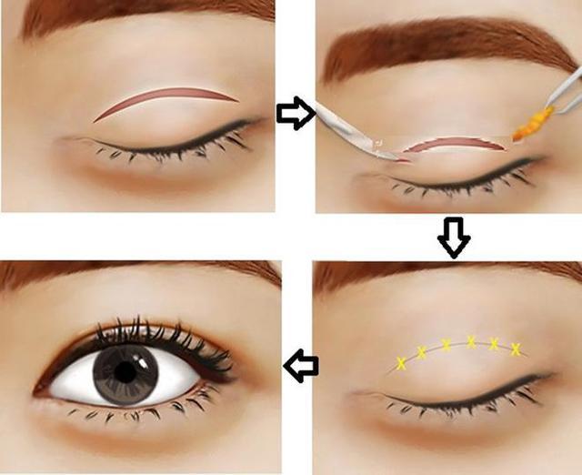 quy trình cắt mí mắt