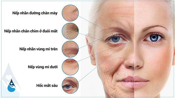 Trẻ hoá vùng mắt
