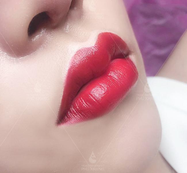 khách hàng phun môi tại phú khang