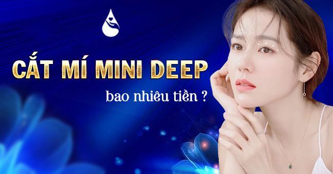https://thammyvienphukhang.com/upload/tham-my-mat/bam-mi-mini-deep/cat-mi-mini-deep-bao-nhieu-tien.jpg