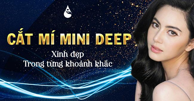 cắt mí mini deep 5d