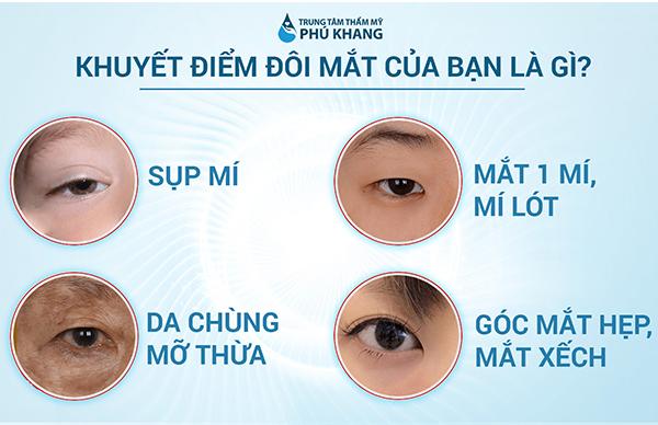 Những trường hợp nên thực hiện cắt mí mắt