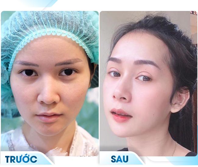khách hàng giảm sưng sau khi cắt mí mắt