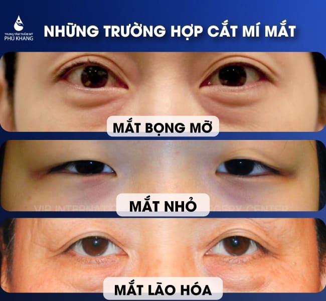đối tượng nào nên cắt mí mắt