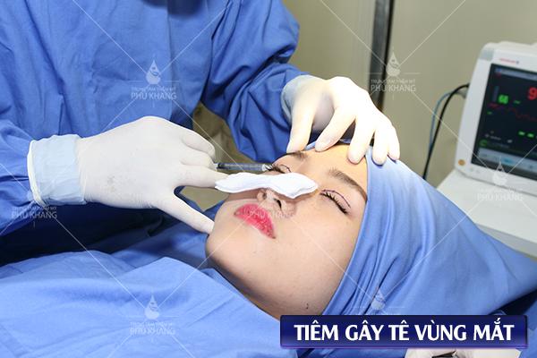 quy trình cắt mí mắt plasma, cắt mí plasma, cắt mắt 2 mí