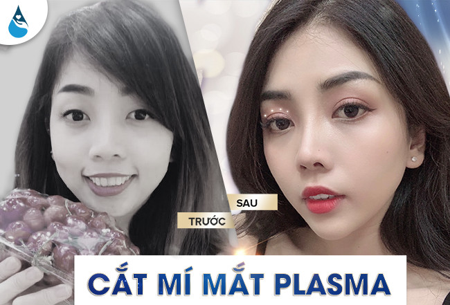 hình ảnh khách hàng cắt mí plasma có tốt không