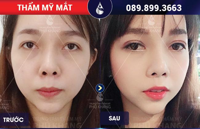 hình ảnh khách hàng đã sửa lại cắt mí mắt bị trợn