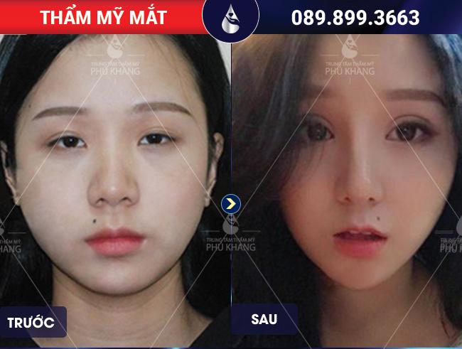 Hình ảnh khách hàng chữa sụp mí mắt tại TMV Phú Khang