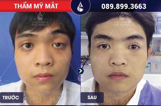 Hình ảnh khách hàng Chữa sụp mí mắt giá bao nhiêu tại TMV Phú Khang