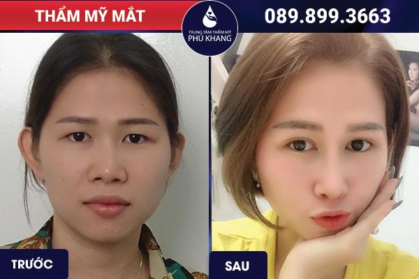 Khách cắt mí mắt giá bao nhiêu tiền tại Phú Khang