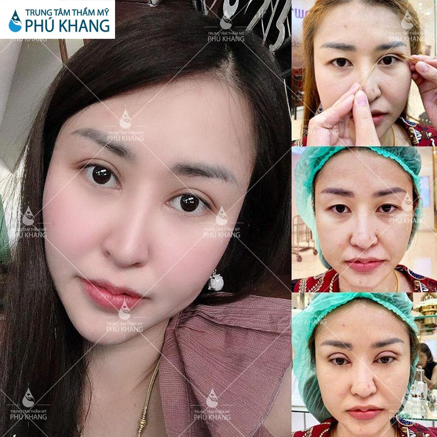 Khách hàng sau khi thực hiện Cắt mắt Plasma tại Phú Khang