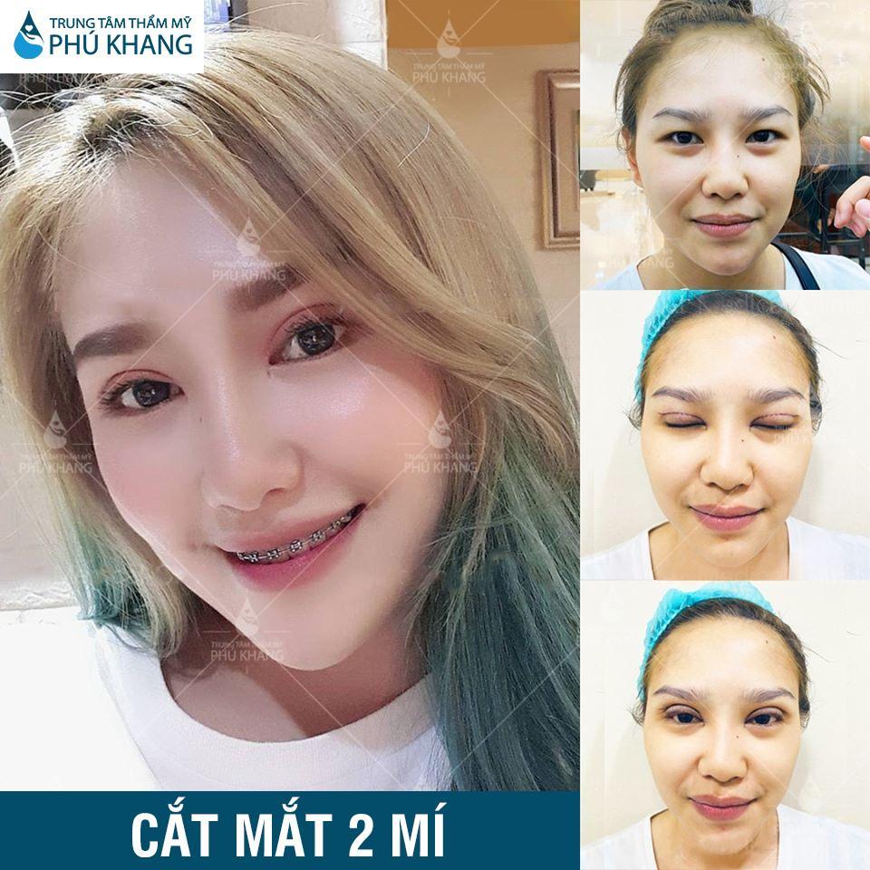 Hiệu quả khách hàng sau khi cắt mí mắt tại Phú khang